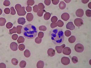 Нейтрофилы в крови