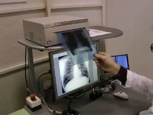 Доза облучения при флюорографии и рентгене легких