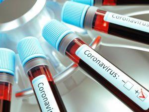 Пробирки с кровью на коронавирус