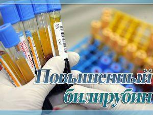 Повышенный билирубин - что это такое, причины высоких показателей в крови, как понизить и лечить