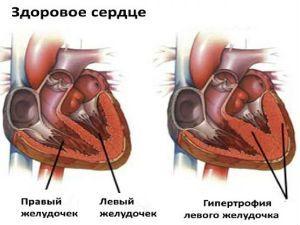 Признаки перегрузки левого желудочка на экг