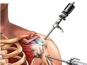 Изображение - Период восстановления плечевого сустава reab-artroskopiya-plsust