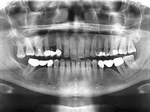 Рентгенография челюсти