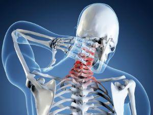 Для чего делают рентген шейного позвонка