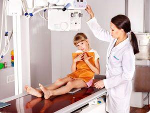 Детский рентген грудной клетки