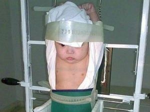 Рентген легких детям