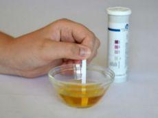 Проверка наличия ацетона в моче