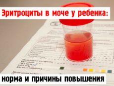 Эритроциты в моче у ребенка
