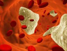 Гомоцистеин в крови