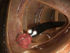 Удаление полипа кишечника эндоскопом