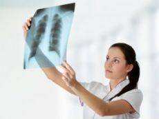 Врач рассматривает рентгенограмму