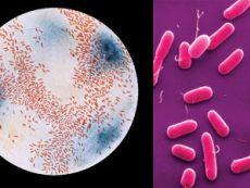 Лактобациллы под микроскопом