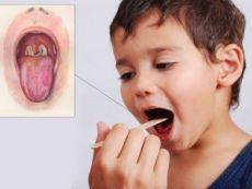 Дифтерийный зев у ребенка