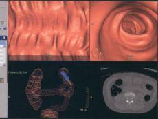 Снимок виртуальной колоноскопии